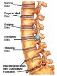 Bulge and herniate disc
